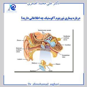 درباره بیماری نورینوم آکوستیک چه اطلاعاتی دارید؟