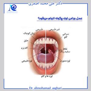 عمل جراحی لوزه چگونه انجام میشود؟