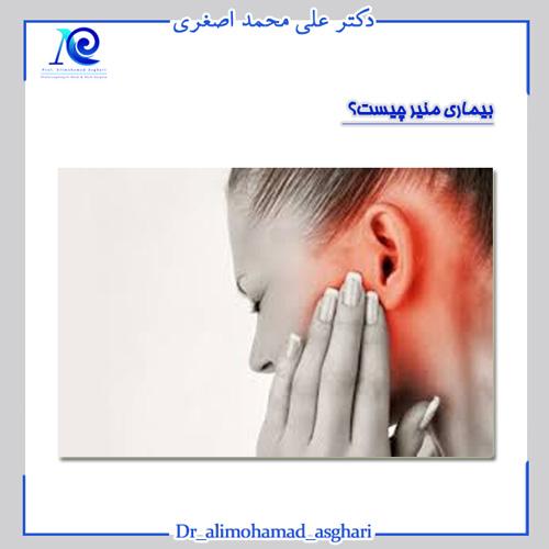 بیماری منیر چیست؟