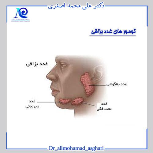 تومورهای غدد بزاقی
