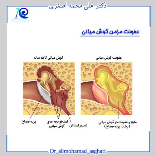 عفونت مزمن گوش میانی